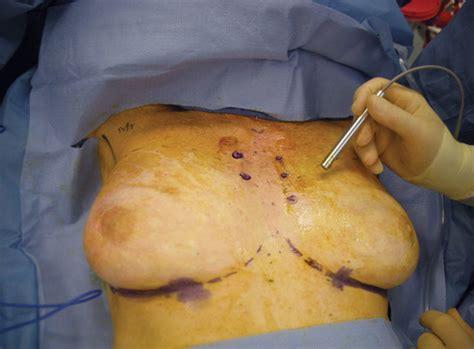 breast reconstruction dr talmor jpg 800x590